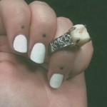 Wisdom Tooth Engagement Ring